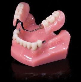 Dental-attatchments