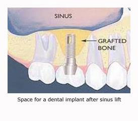 Sinus-lift2